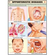 Opportunistic Diseases Chart (70x100cm)