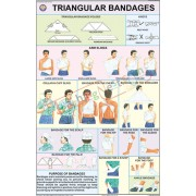 Triangular Bandages Chart (50x75cm)