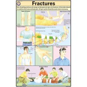 Fractures Chart (50x75cm)
